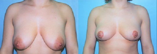 Areola reduction procedure in Sydney