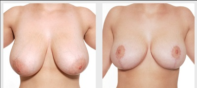 breast reduction procedure sydney