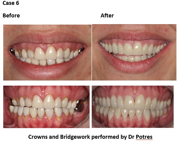 cosmetic dentistry before and after 77