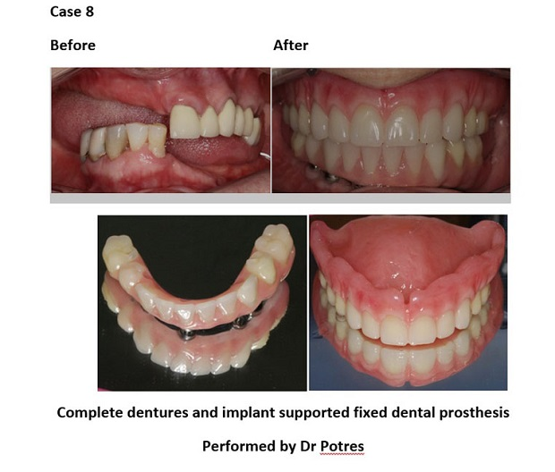 cosmetic dentistry before and after 99 new