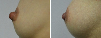 nipple reduction procedure in Sydney