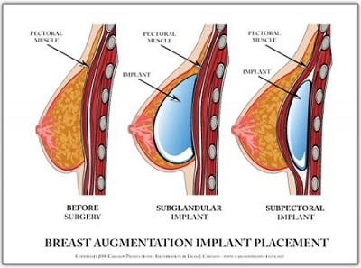 breast implant placment