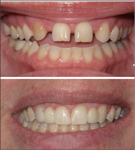 cosmetic dentisry sydney teeth repair