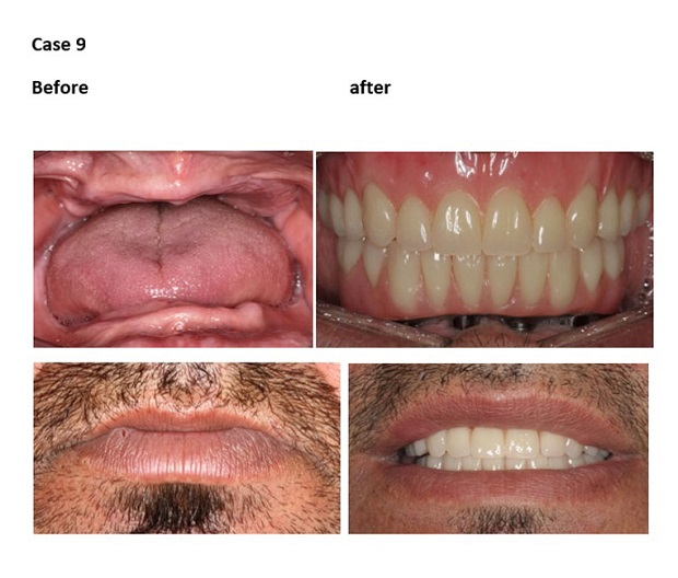 cosmetic dentistry before and after 10 10new