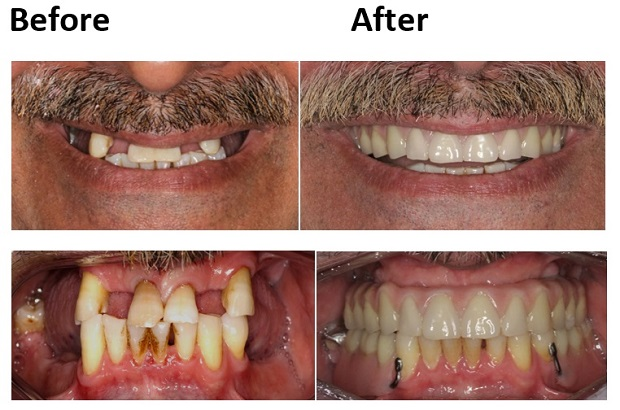 cosmetic dentistry before and after 11