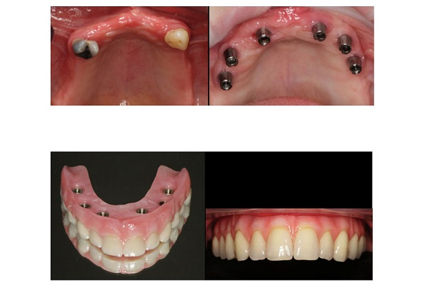 cosmetic dentistry before and after 33