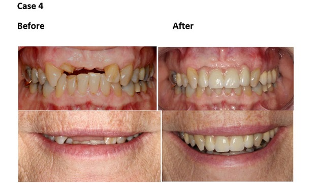 cosmetic dentistry before and after 55