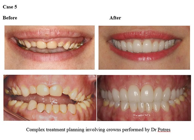 cosmetic dentistry before and after 66