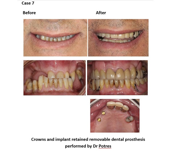 cosmetic dentistry before and after 88 new