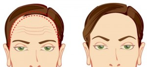 face lift procedure in Sydney