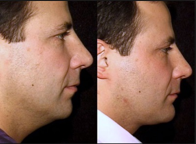 neck lift procedure in Sydney